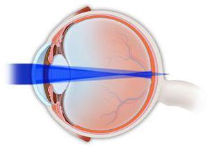 Лазерное восстановление зрения новосибирск