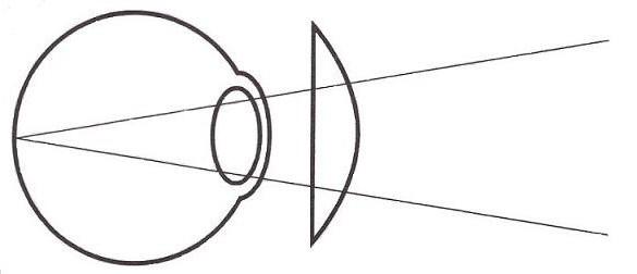 Зрение минус у ребенка в 6 месяцев