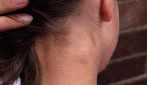 у ребенка опухли лимфоузлы на шее