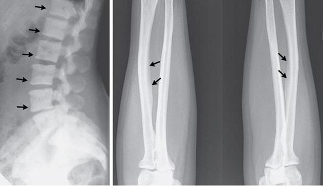 Хвороба кісток назву