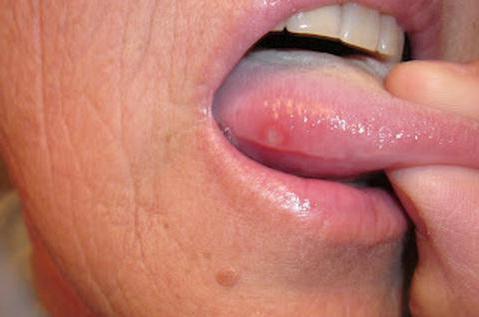 Щиплет язык причина лечение