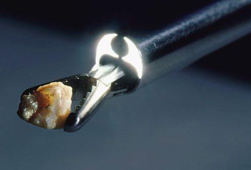 Если обнаружен камень в мочеточнике у мужчины, что делать?