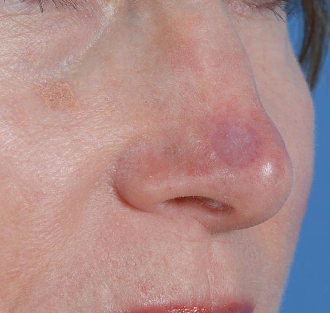 пересадка кожи после ожога
