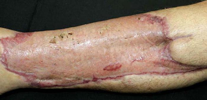 пересадка кожи после