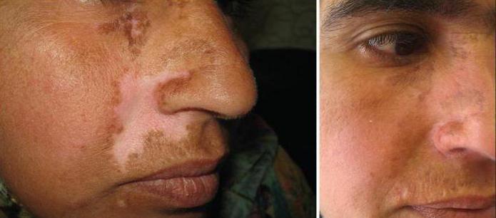 пересадка кожи на лице