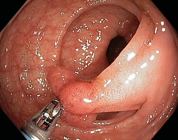 тубулярная аденома кишки