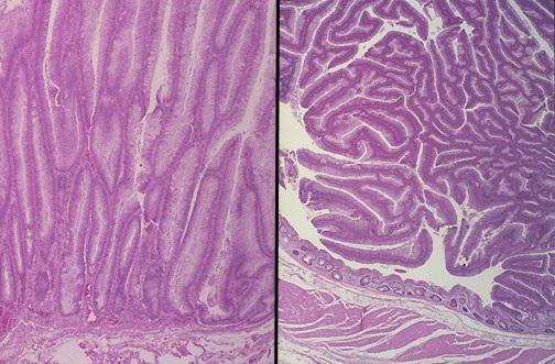 тубулярная аденома с дисплазией 1 2 степени