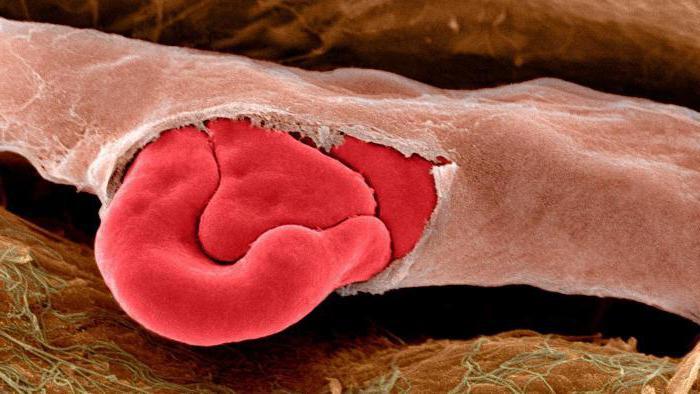 признаки капиллярного кровотечения