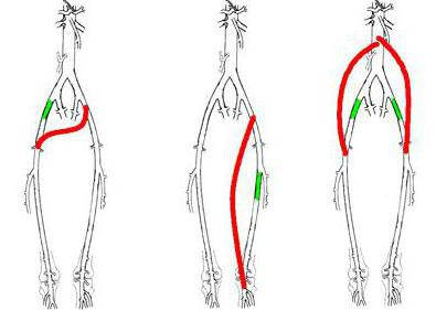 Питание при варикозе ног