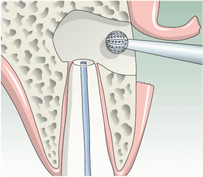 цистэктомия зуба