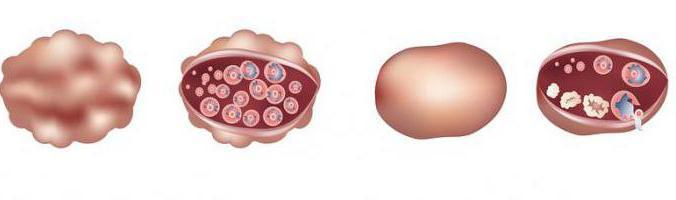 Беременность и поликистоз яичников отзывы