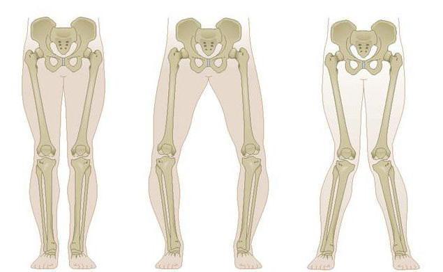 вальгусная деформация коленных суставов