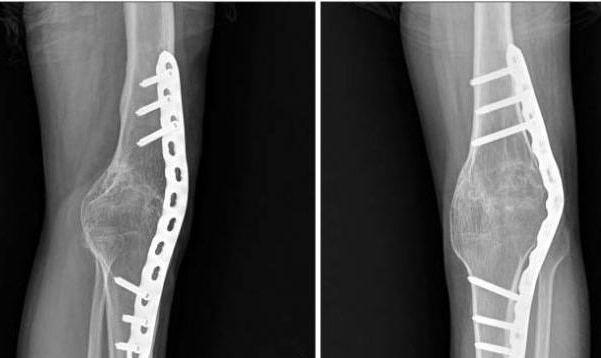 массаж вальгусная деформация коленных суставов
