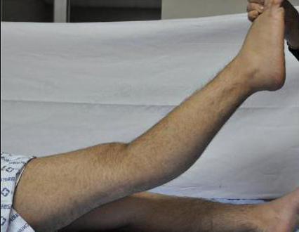 вальгусная деформация коленных суставов у взрослых