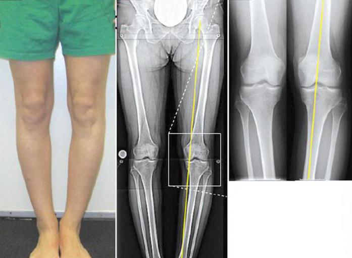 вальгусная деформация коленных суставов у детей лечение
