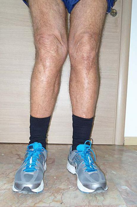 вальгусная деформация коленного сустава лечение