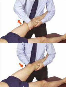 вальгусная деформация коленных суставов фото