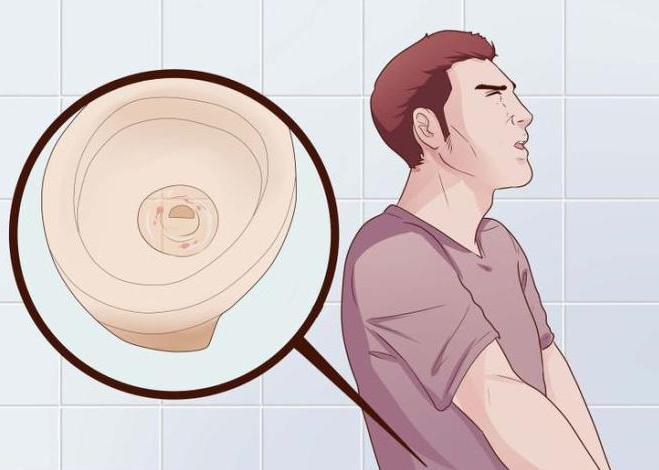 Выделения из члена и желтая сперма неприятный запах