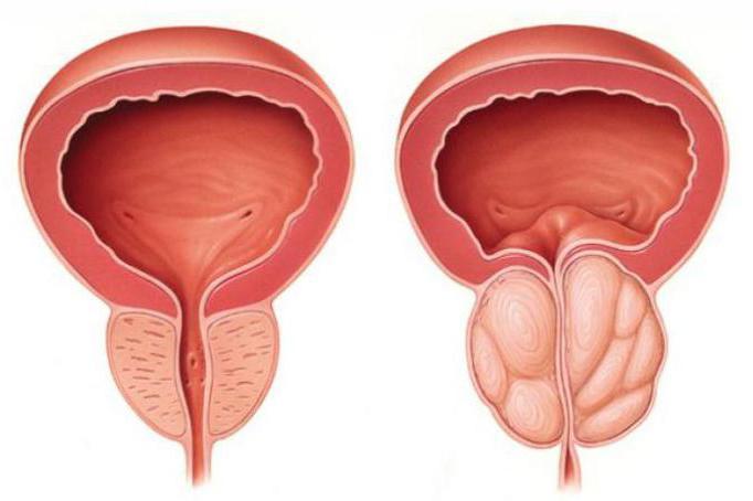 кровяные выделения из пениса