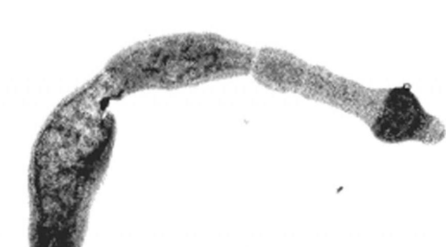 паразитарная киста печени лечение