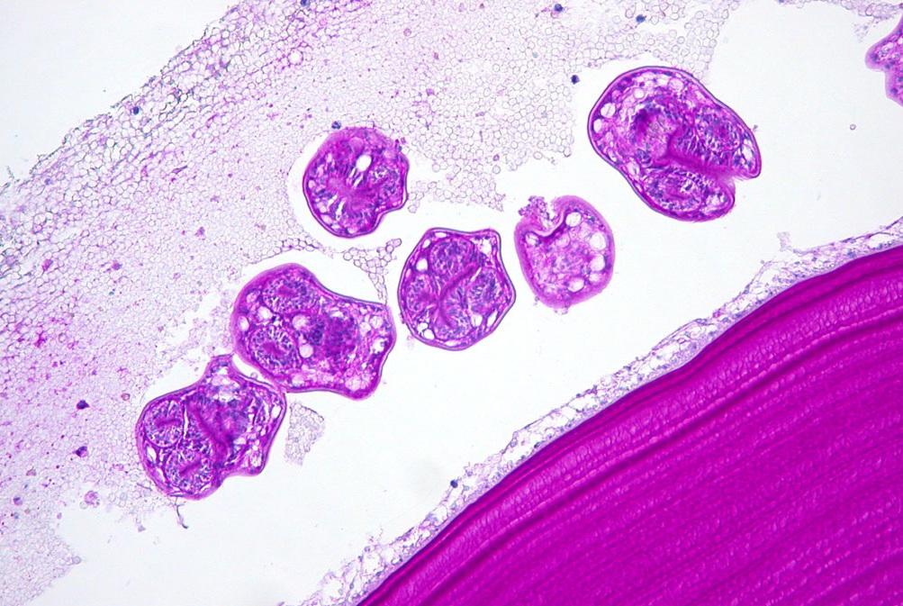 паразитарная киста печени диагностика