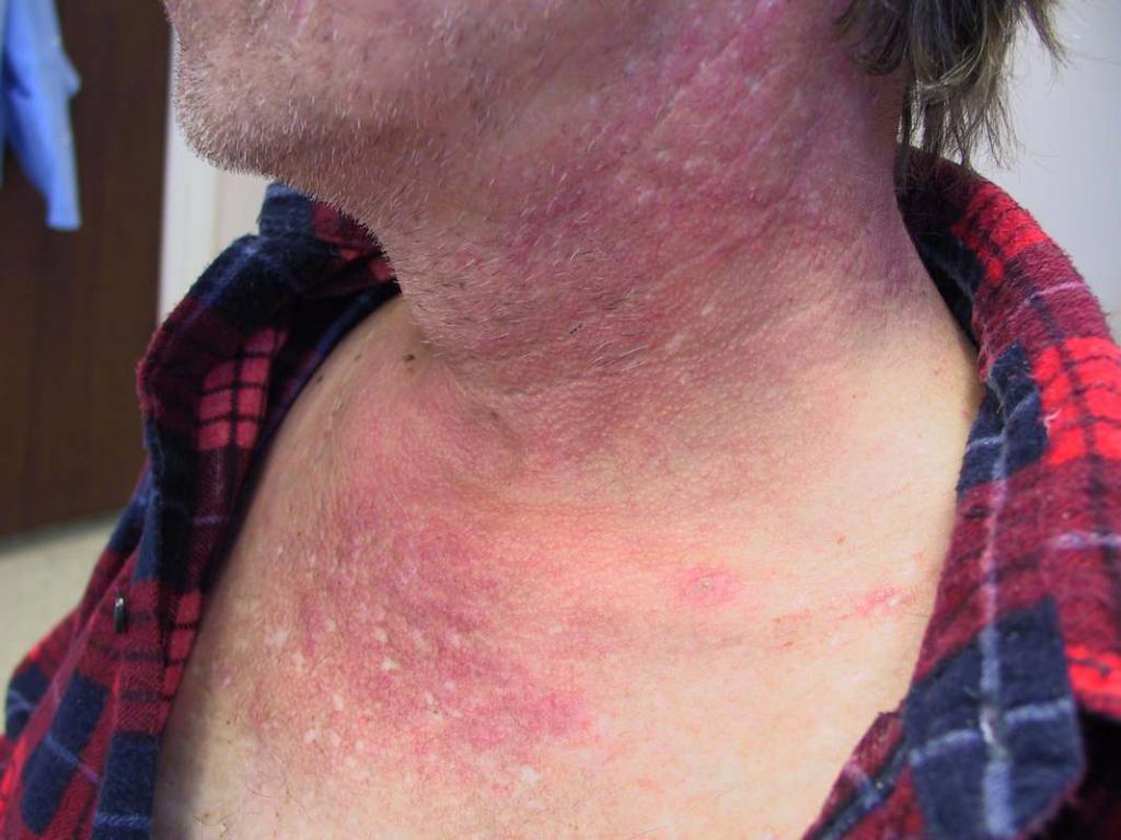 Дерматомиозит - это... Проявления, диагностика и лечение дерматомиозита