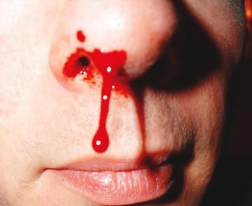кровь из носа последствия