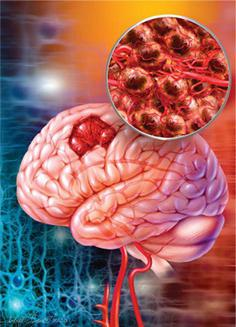 Аспирин или парацетамол что лучше от головной боли