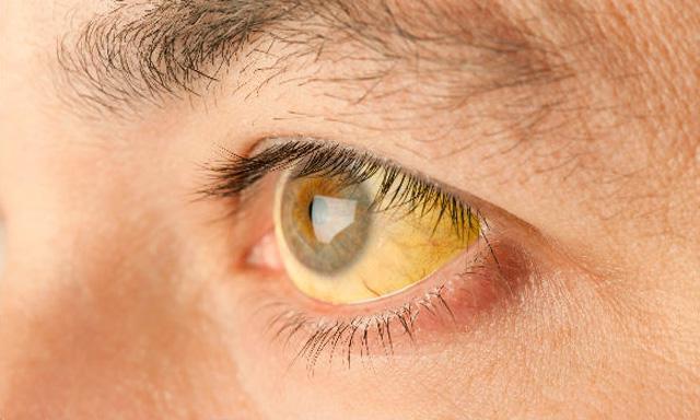 Причины и симптомы болезни Боткина. Болезнь Боткина: профилактика, лечение