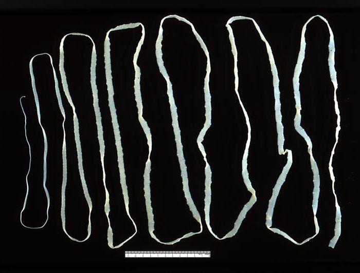 паразиты спине человека