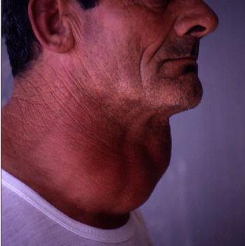 заболевания щитовидной железы симптомы признаки и лечение