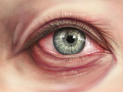 аллергия на коже от лекарств