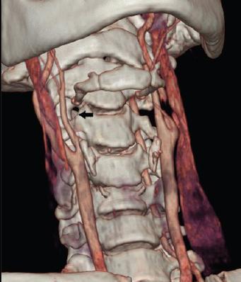 остеохондроз шейно-грудного отдела позвоночника