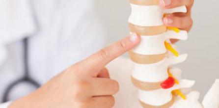 как лечат остеохондроз шейного отдела позвоночника