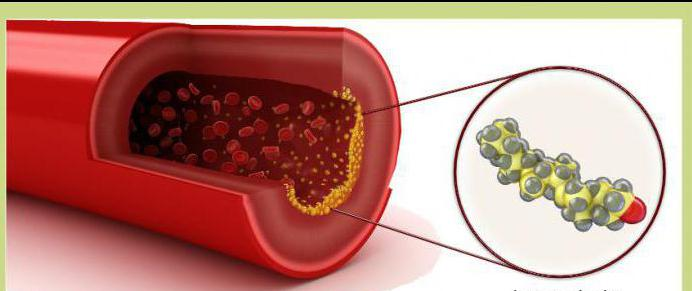 общий холестерин выше нормы