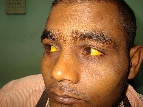 синдром доброкачественной гипербилирубинемии