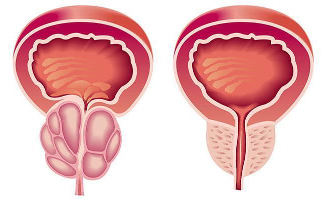 Описание Простам аппарат для лечения простатита