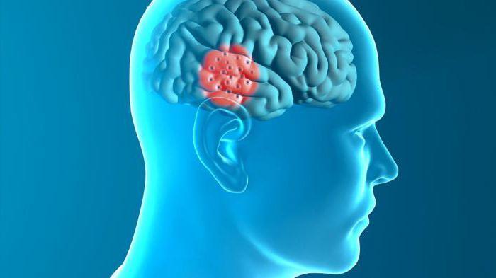 дегенеративные заболевания нервной системы