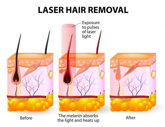 отзывы после лазерной эпиляции