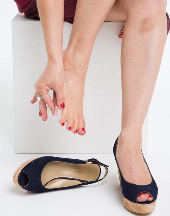 новая обувь натирает мозоли что делать