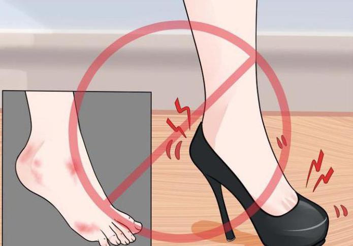 обувь натирает пятки что делать