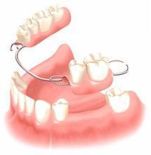 вставлять зубы больно