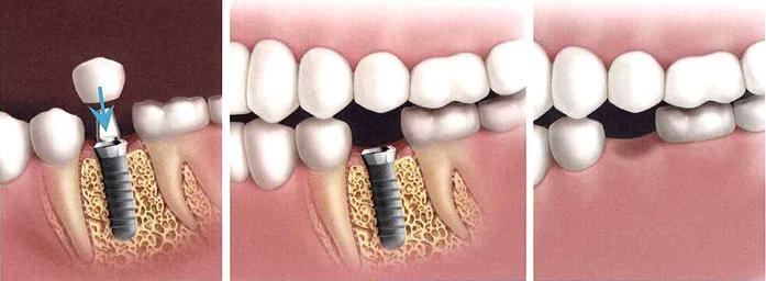 можно ли вставить зуб