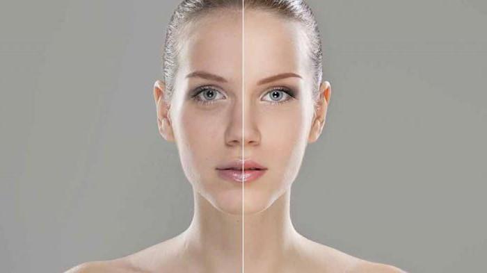 """""""Мезоскульпт С 71"""": отзывы косметологов, особенности применения и эффективность"""