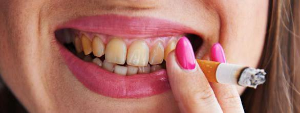 лучшая паста для отбеливания зубов рейтинг