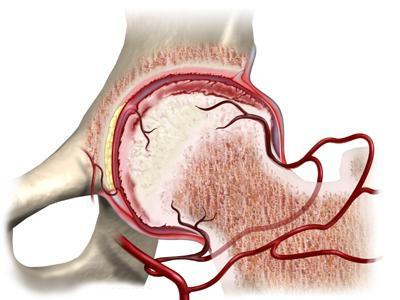 аваскулярный некроз головки бедренной кости лечение