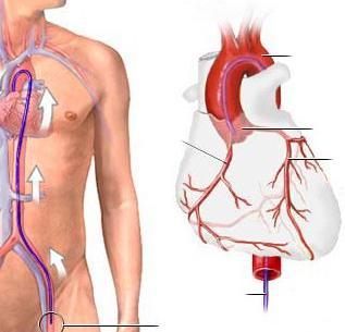 Коронарография сосудов сердца: как делают, стоимость, осложнения ...