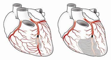 коронарография сосудов сердца осложнения