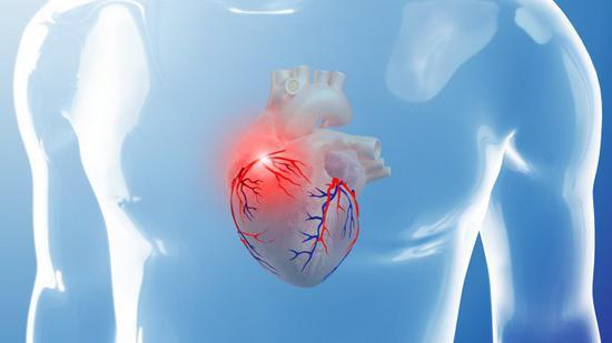 Что такое коронация сердца