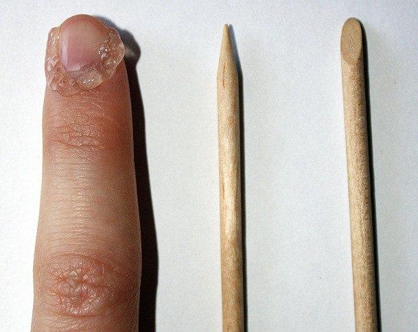 Средство для удаления кутикулы: какое лучше? Как убрать кутикулу без обрезания